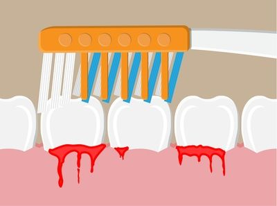 Коронки и фасети 2 | Medical Dent