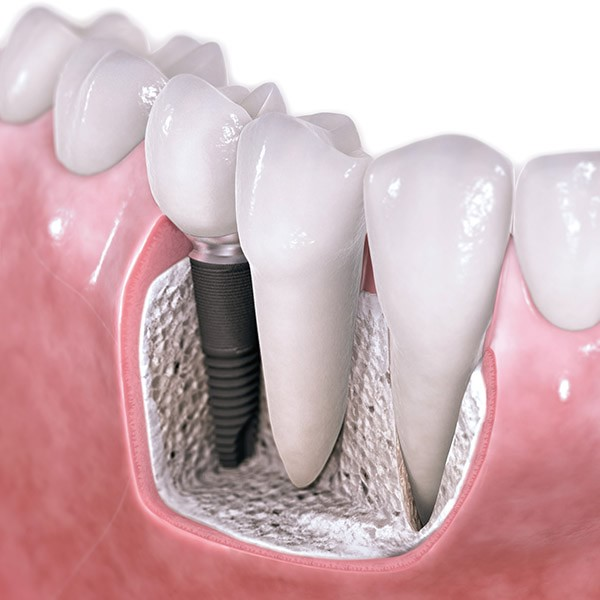 Questions and answers about implantology